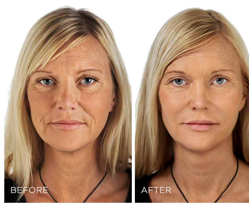 skin boosters before after