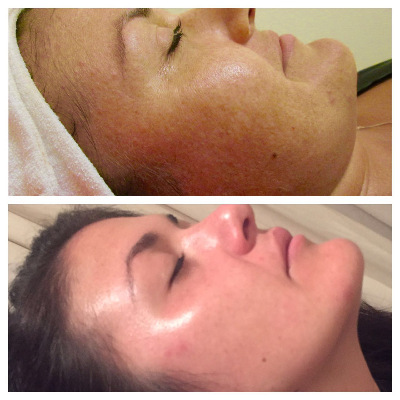 Before and after 2 pigmentation peels