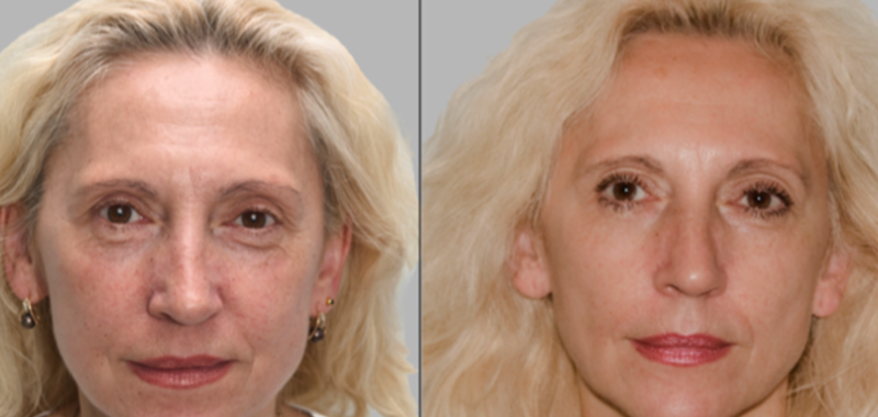 redermalization treatment results