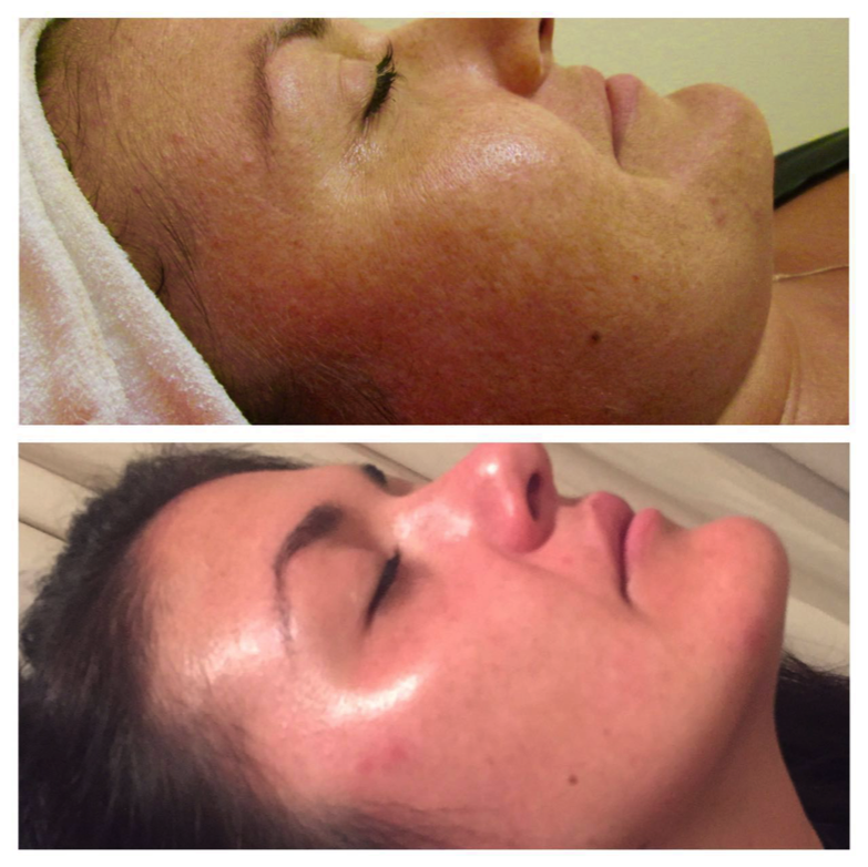 Dora Before after Pigmentation peels